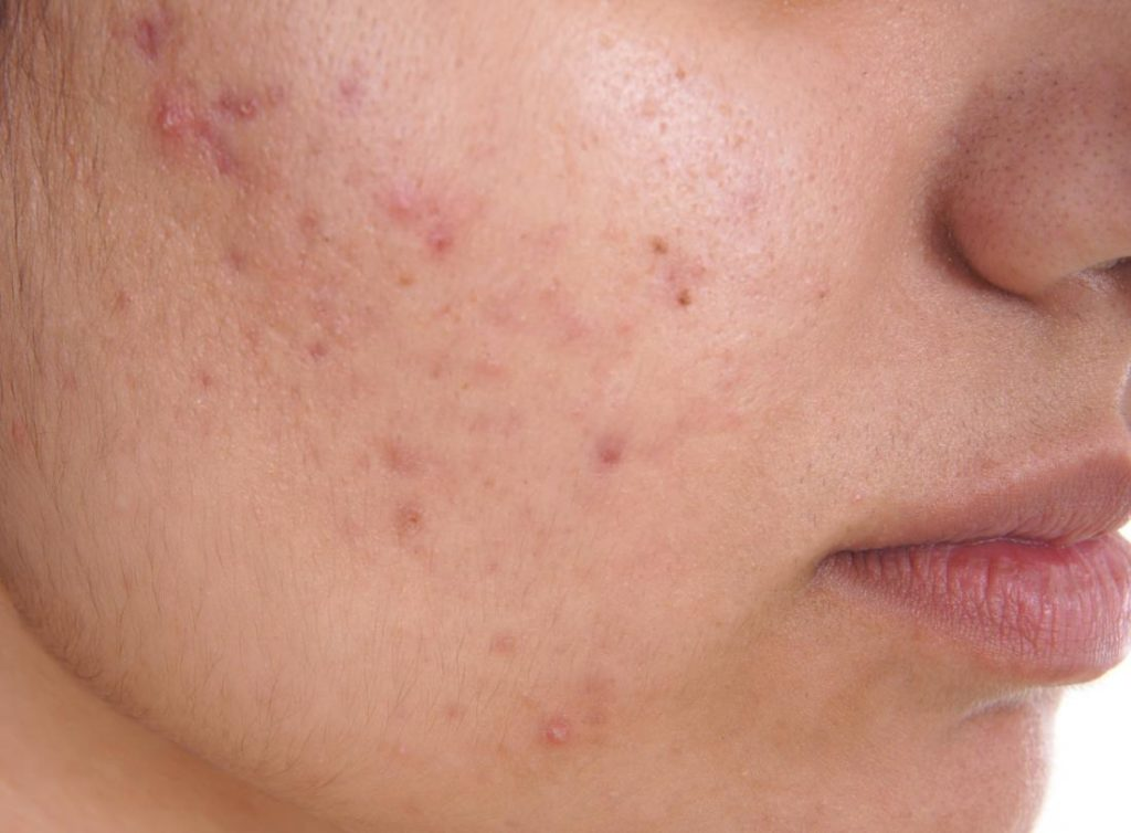 Rid of Acne during Pregnancy