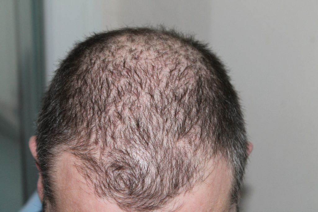 illness that causes hair loss