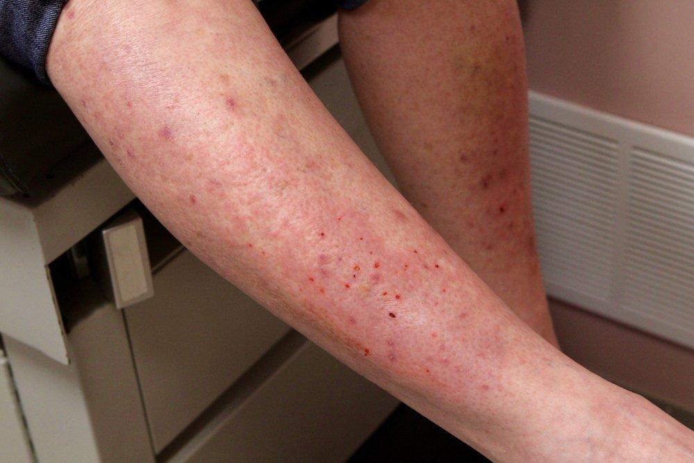 Celiac Disease Rash