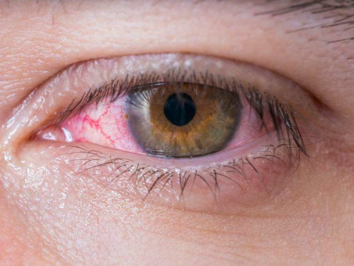 Bloodshot eyes after shower