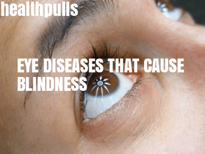 Eye diseases that cause blindness