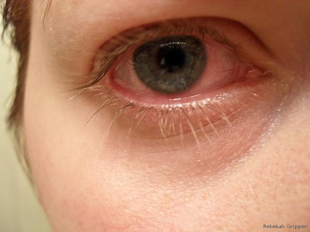 bloodshot eyes causes