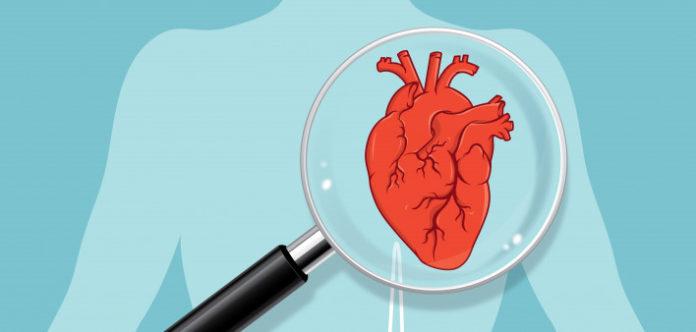 Calcium supplements heart diseases