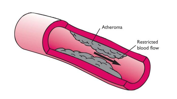 Coronary Thrombosis