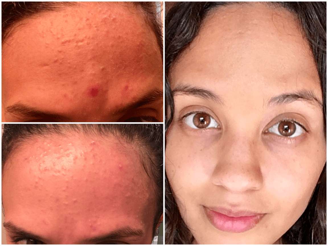 What Is Fungal Acne Causes Treatment And Tea Tree Oil Benefits