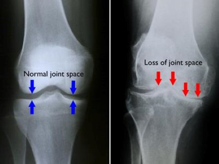 Rheumatoid arthritis of knee