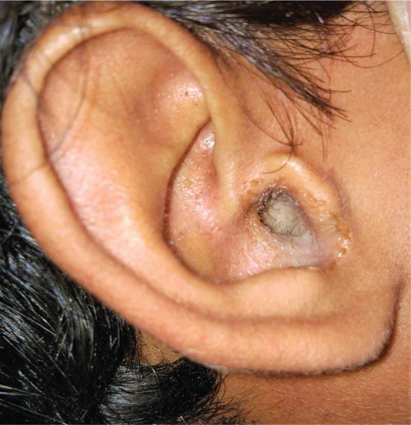 أسباب التهابات الأذن الوسطى عند الأطفال وطرق علاجها منوعات نافذة Dw عربية على حياة المشاهير والأحداث الطريفة Dw 22 05 2018
