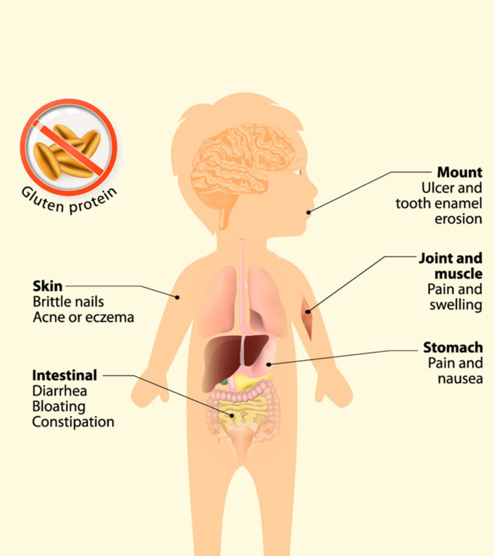 Celiac Disease Symptoms in Children