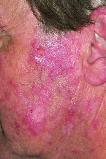 Systemic Lupus Erythematosus Treatment