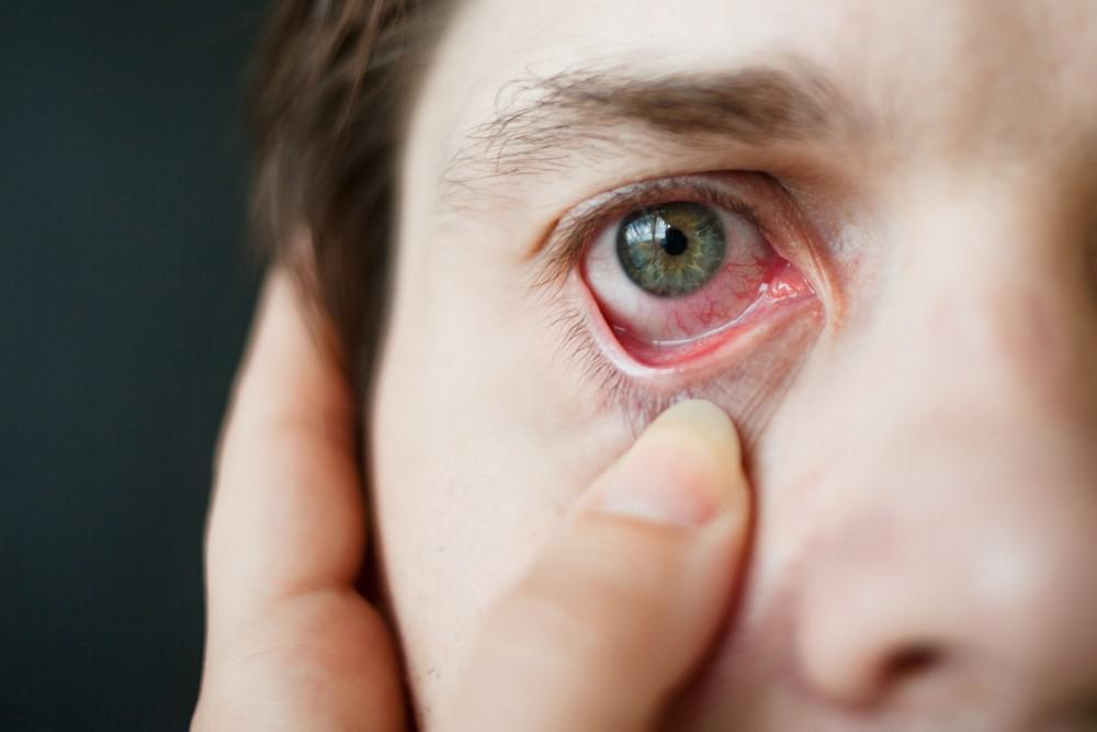 6 Major Causes Of Itchy Eyes At Night : Healthpulls