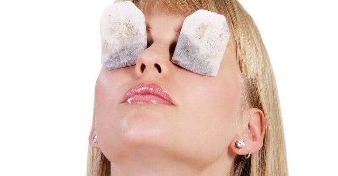best home remedies of swollen eyes
