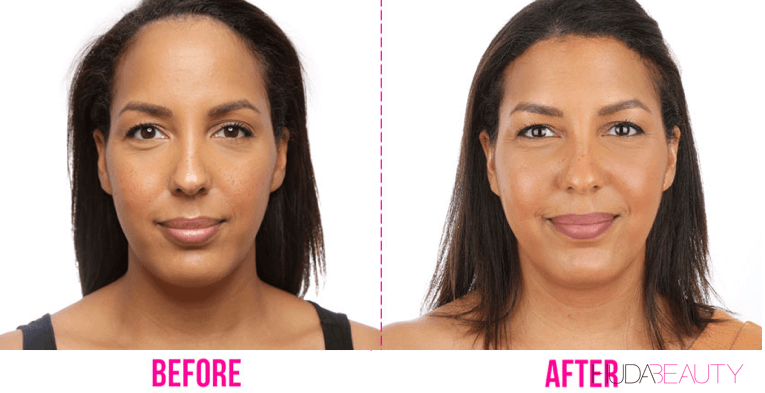 Forehead Reduction before and after