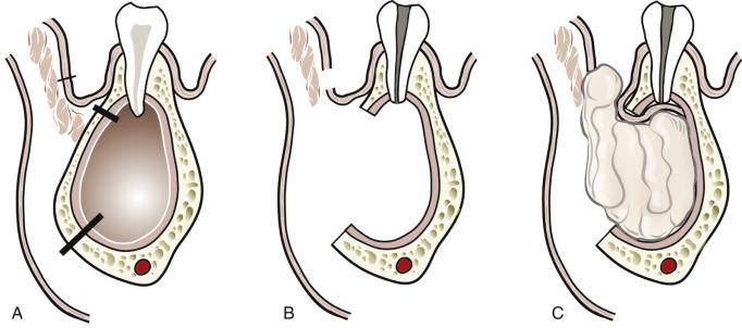 Der drüse abszess bartholinischen Bartholinitis: Symptome,