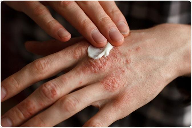 eczema pruriginoso vörös foltok az alsó lábszáron visszérrel